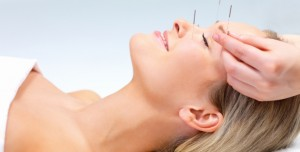 Acne and Acupuncture